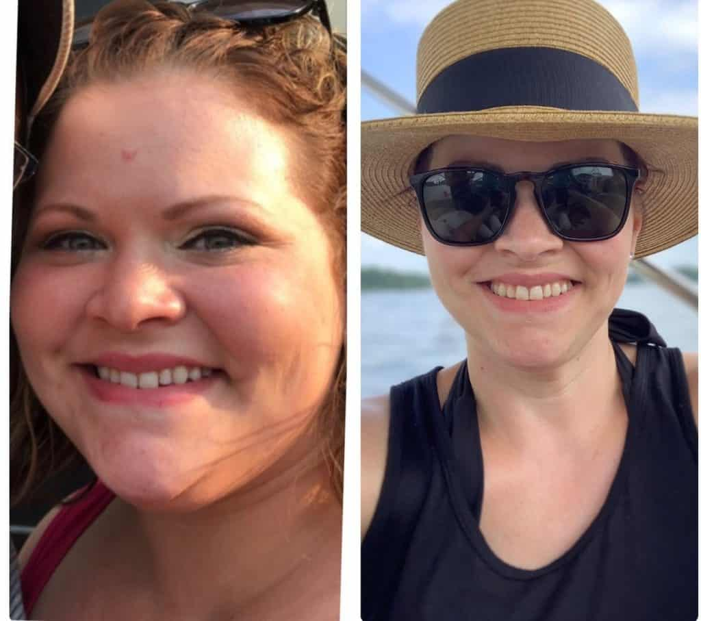 Angie, weight loss before and after of face